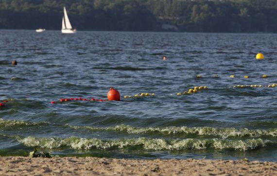 Mokslininkė apie vandens žydėjimą: tai nėra vienkartinio nusišlapinimo į jūrą pasekmė